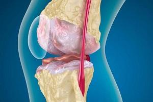 gel roșu al articulației caviarului artroza în articulația genunchiului 3 linguri