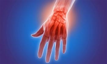 псориатический артрит рекомендации Вам посетить сайт