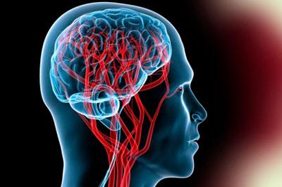 Острая гипертоническая энцефалопатия: симптомы ...